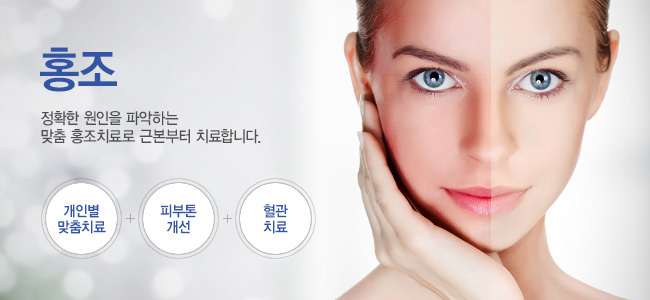 홍조_제오피부과